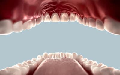CoVid-19 In the Oral Cavity