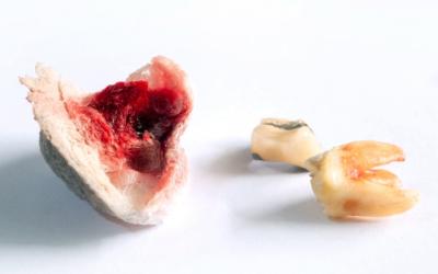 The Usual Suspects In Root Canal Failures